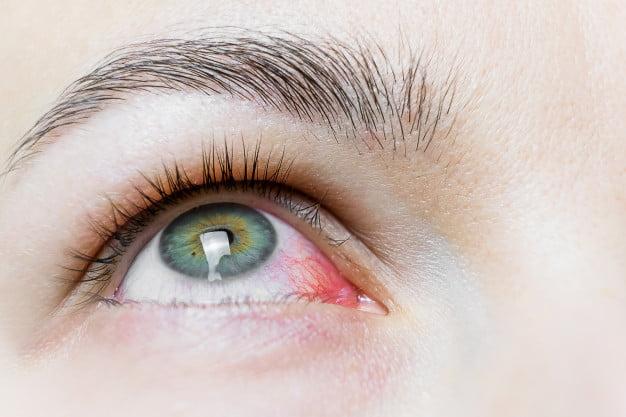 Vision Care & Pink Eye